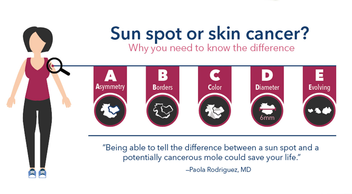 Sun Spot Or Skin Cancer Know The Difference Thrive