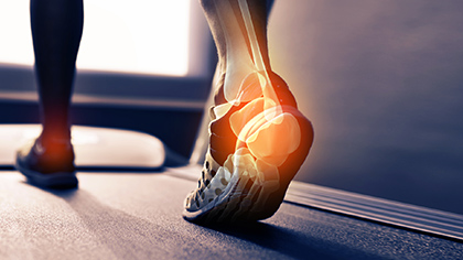 Feet walking on treadmill and illustration of skeleton drawn over foot.