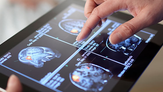 Fingers using touchscreen of tablet showing digital scans of brain.