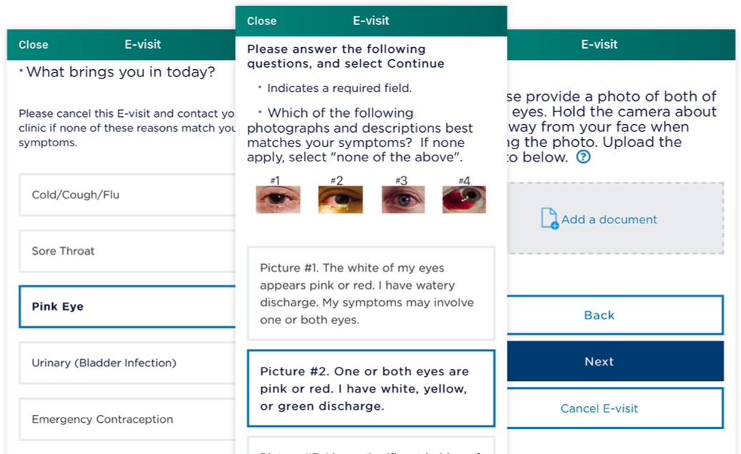 Example screenshots of how to schedule an e-visit for pink eye by choosing your health concern first then choosing a picture that closely resembles how your eye looks then attaching a photo of both of your eyes.